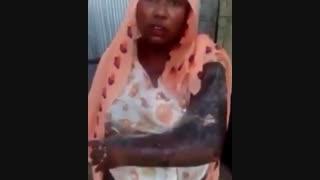 سوزاندن زنان میانماری