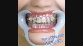 تاثیر ارتودنسی دندان بر زیبایی خنده