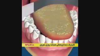 چطور | کاهش بوی بد دهان