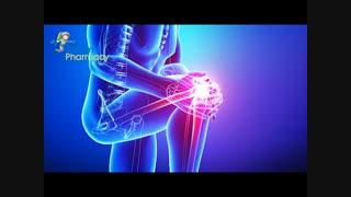 زانو درد و راههای درمان آن