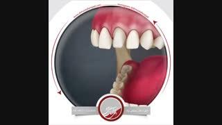 انیمیشن روکش دندان | دکتر اشکان مصطفی نژاد