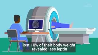 بلاهایی که وزن کم کردن سر بدن و مغز شما میاره!