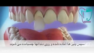 لمینت دندان   سیمادنت