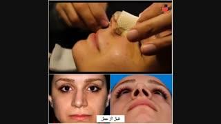 نمونه بینی جراحی شده بلافاصله بعد از برداشت اسپلینت