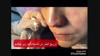 رفع گودی زیر چشم با تزریق فیلر