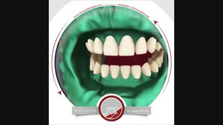 انیمیشن بلیچینگ دندان  | دکتر مصطفی نژاد