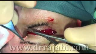 جراحی بلفاروپلاستی یا برداشتن پف پلک بالا