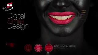 طراحی لبخند | کلینیک دندانپزشکی مهر زعفرانیه