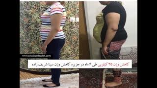 کاهش وزن 35 کیلوگرمی فلورا در جزیره کاهش وزن
