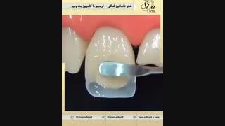 ترمیم دندان با کامپوزیت ونیر | دندانپزشکی سیمادنت