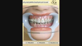 دستگاه های ارتودنسی ثابت | دندانپزشکی سیمادنت