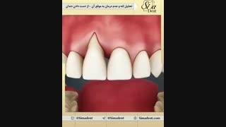 تحلیل لثه | دندانپزشکی سیمادنت