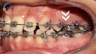 طول درمان ارتودنسی | دکتر مسعود داوودیان
