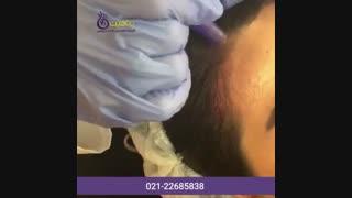 درمان ریزش مو با مزونیدلینگ
