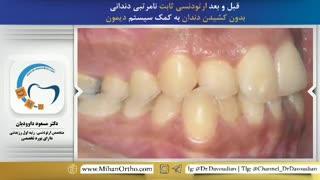 قبل و بعد ارتودنسی بدون کشیدن دندان | دکتر داوودیان