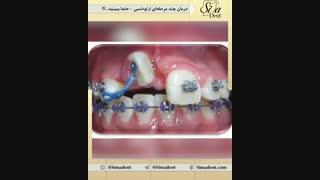 قبل و بعد ارتودنسی ثابت | دندانپزشکی سیمادنت