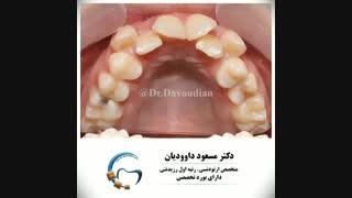قبل و بعد ارتودنسی با کشیدن دندان | دکتر داوودیان