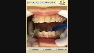 براکت ارتودنسی | دندانپزشکی سیمادنت