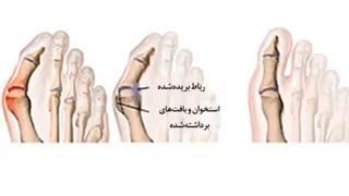 درمان باور نکردنی انحراف قوزک انگشت شست پا