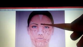 آناتومی عضلات صورت . نمونه فیلم پکیج اموزش مجازی تزریق فیلر وبوتاکس