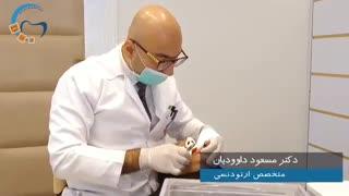 ریتینر ثابت و بهداشت ارتودنسی | دکتر مسعود داوودیان