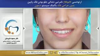 نامرتبی دندانی و جلو بودن فک | دکتر مسعود داوودیان