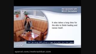 جوانسازی پوست با لیزر فرکشنال