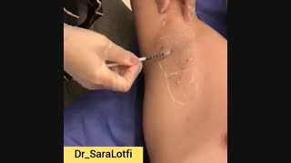 تزریق بوتاکس زیر بغل