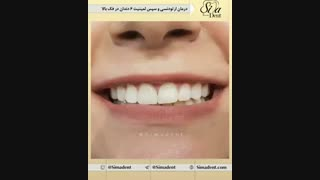 کلینیک دندان در تهران   سیمادنت